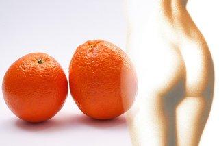 Hoe je cellulite kunt verminderen? Lees hier verschillende tips!